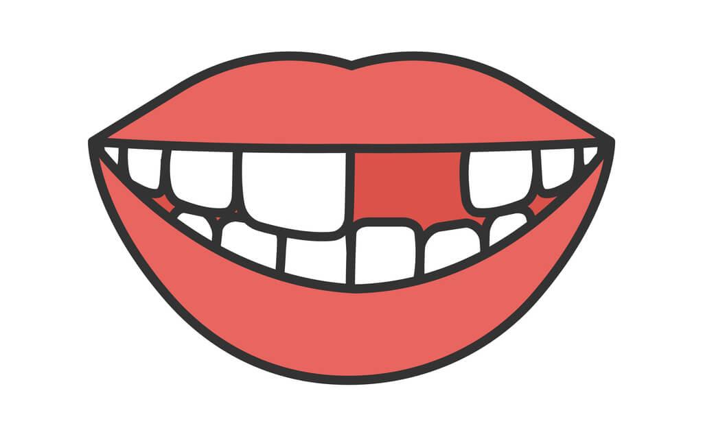 夢占い|歯が抜ける夢の意味は?虫歯、歯を磨く夢…あなたの心理状況を解説